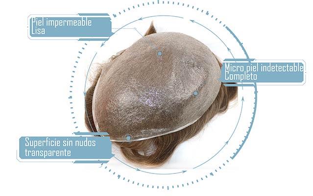 descripciones de materiales de la protesis platen