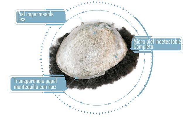 descripciones de materiales de la protesis platenium