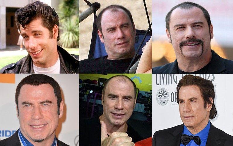 protesis capilares de los famosos