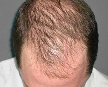 Por qué se produce la caída del pelo