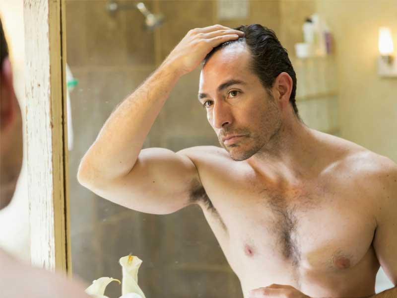 como evitar la caida del cabello en los hombres