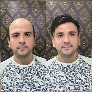 antes y despues de protesis capilar bucaramanga