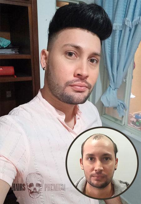 antes y después de protesis capilares con hairs premium