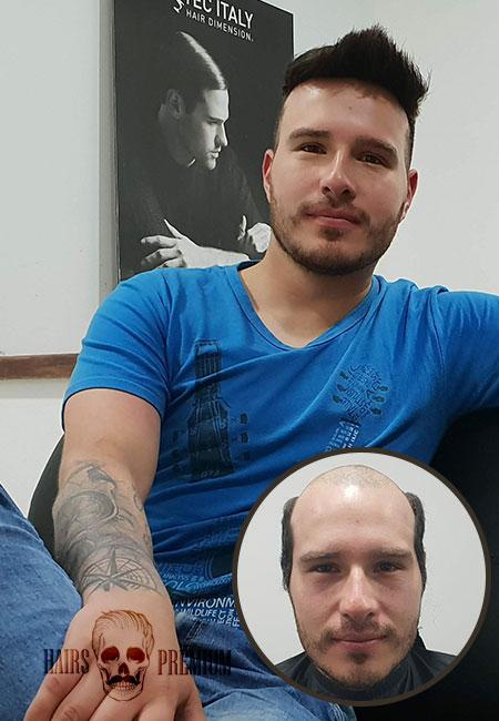 antes y después de usar una prótesis capilar para hombre