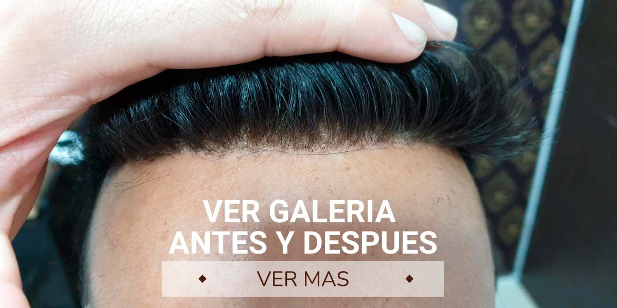 protesis capilares indetectables con lace front