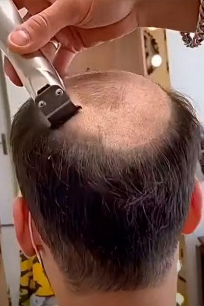 afeitando la cabeza para el molde de una protesis capilar