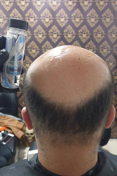 aplicacion de max hold antisudor en el cuero cabelludo